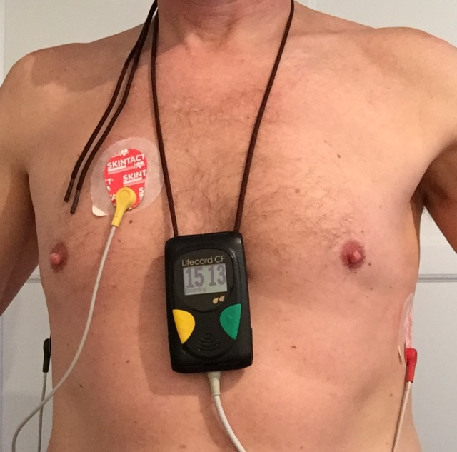 Heart Monitor test